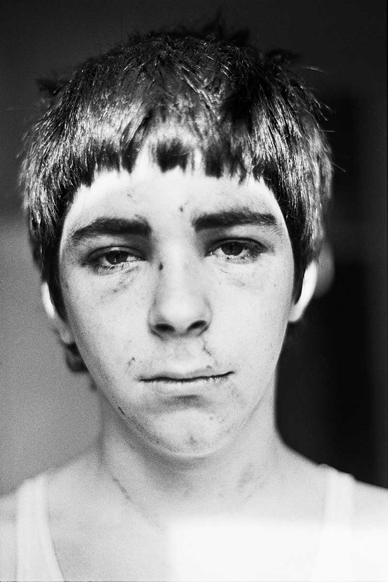 14 Smiler, Self Portrait after NF Beating, 1980 C-Print Photograph
